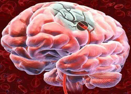 Udar mózgu - jak rozpoznać symptomy?
