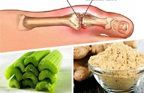 Naturalne usuwanie kwasu moczowego