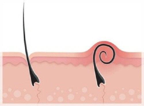 Wrastające włosy po depilacji? – Nigdy więcej!