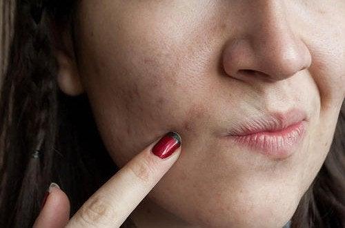 Zanieczyszczona skóra