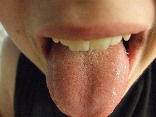 Zdrowie języka