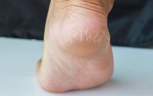 Spękane pięty: wylecz problem w parę dni