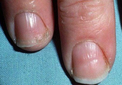 Słabe i łamliwe paznokcie
