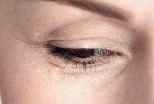 Zmarszczki wokół oka