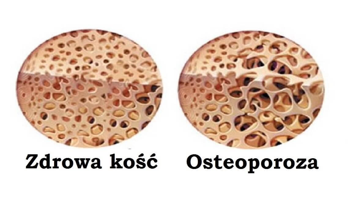 Kości a osteoporoza