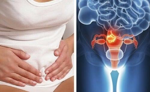 Objawy raka szyjki macicy