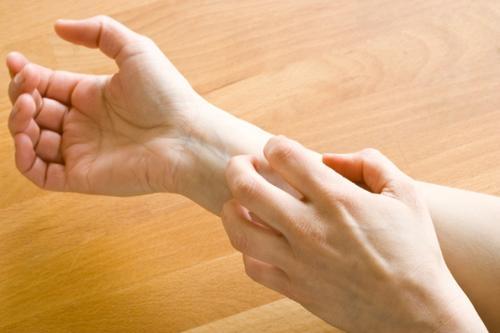 Swędzenie rąk