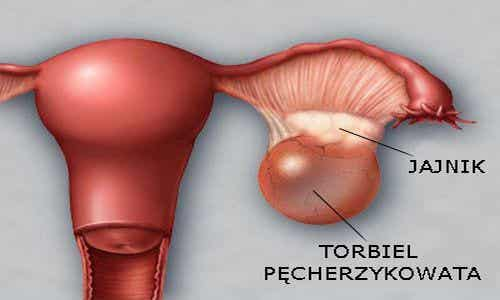 Torbiel jajnika - profilaktyka i wykrywanie