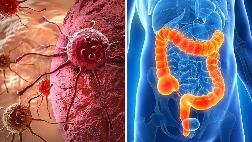 Wykrycie raka jelita grubego