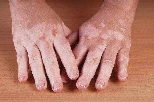 Dłonie dotknięte przez bielactwo