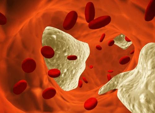 Cholesterol we krwi