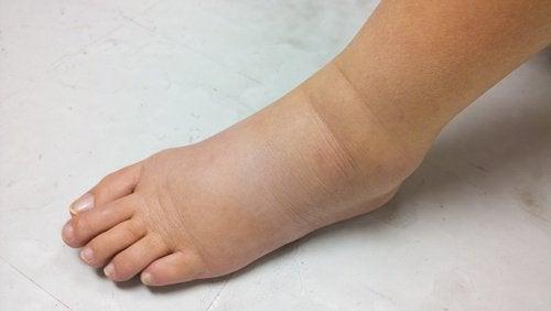 Obrzęk stopy a niewydolność nerek