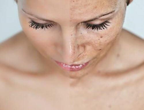 Usuwanie plam i przebarwień ze skóry twarzy