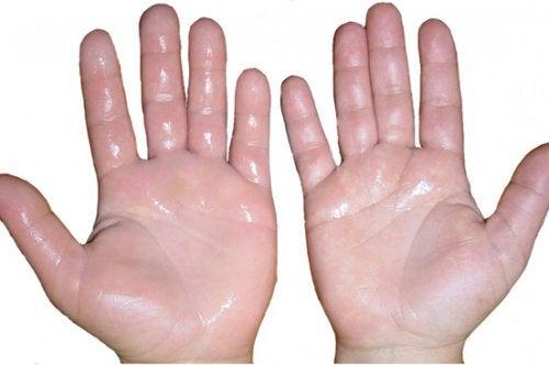 Nadmierne pocenie się rąk