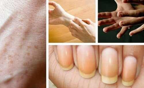 Spójrz na dłonie i oceń swoje zdrowie!