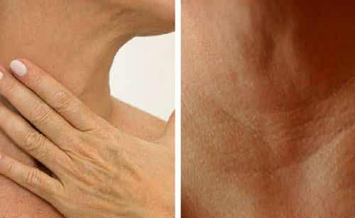 Zmarszczki na szyi i dłoniach? – 4 sposoby