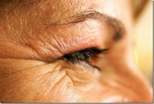 Zmarszczki występujące przy oku