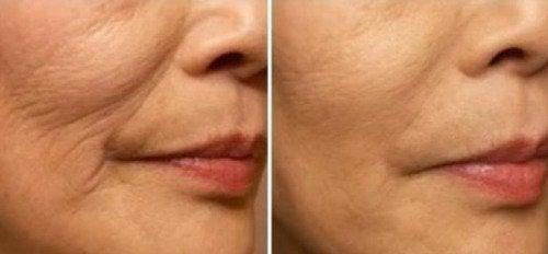 Zmarszczona skóra w okolicach ust