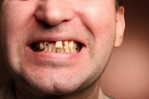 Zepsute zęby