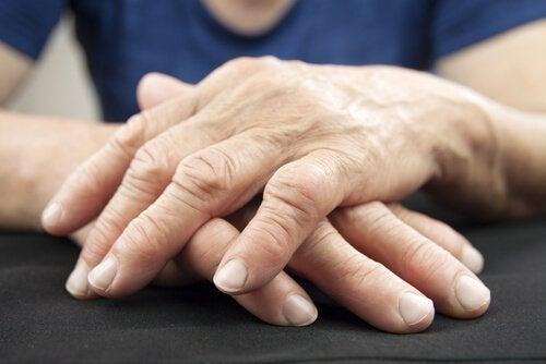 Schorowane ręce