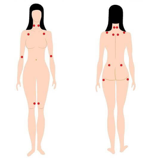 Objawy fibromialgii