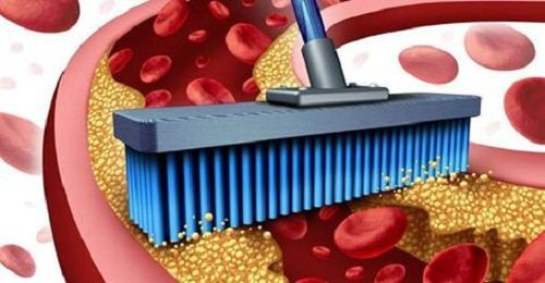 Oczyszczanie tetnic