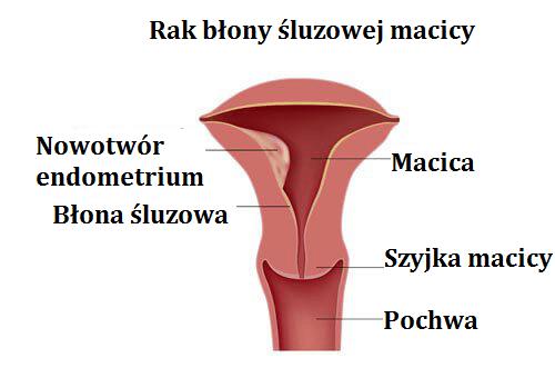 Rak endometrium