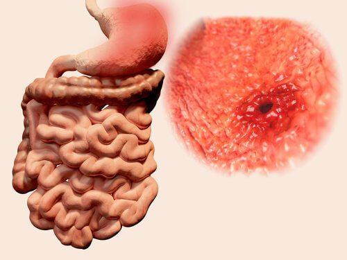 Wrzody-żołądka