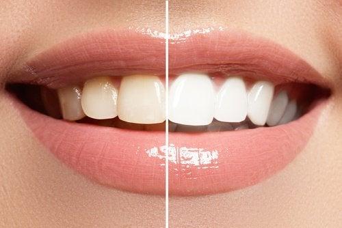 wybielanie zębów - przed i po