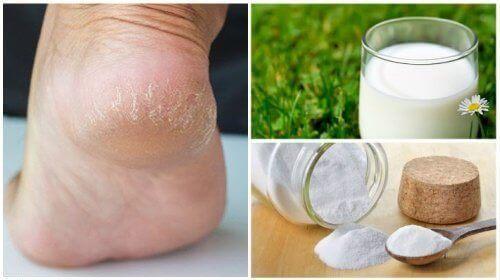 Miękkie stopy dzięki 2 naturalnym składnikom