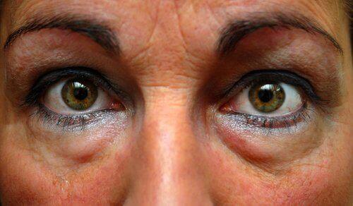 szeroko otwarte oczy starszej kobiety