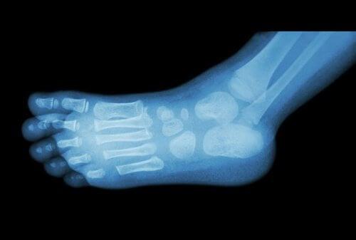 Przeswietlenie stopy