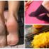 stopy i skórka cytryny