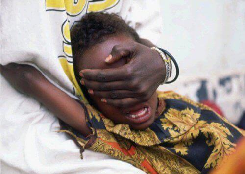 Dziecko podczas obrzezania