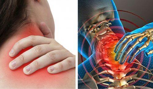Bóle szyi – 6 możliwych przyczyn