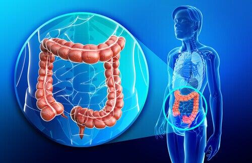 Jelito grube a leczenie choroby crohna