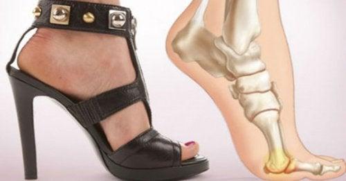 Obcasy – 5 powodów, by przestać je nosić
