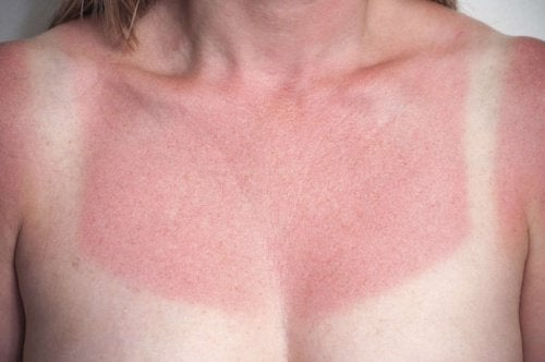 Skóra poparzona słońcem