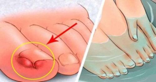 Wrastający paznokieć? Oto 6 domowych sposobów