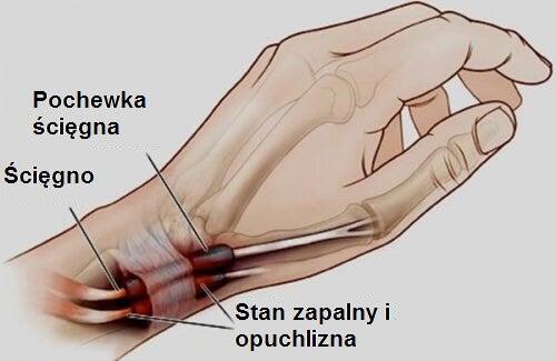 Zapalenie ścięgna - stopy i nadgarstki