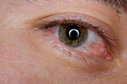 Jak ukoić zmęczone oczy? Oto 6 domowych sposobów