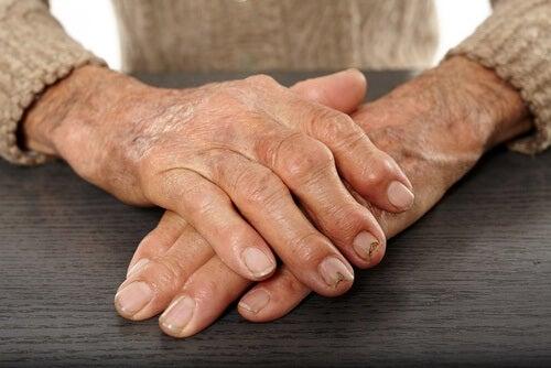 Schorowane dłonie