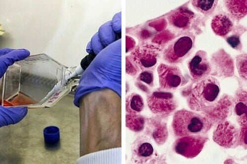 Badania nad białaczką