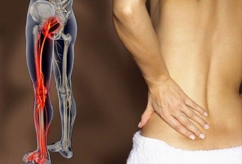Rwa kulszowa przyczyną bólu w dole pleców