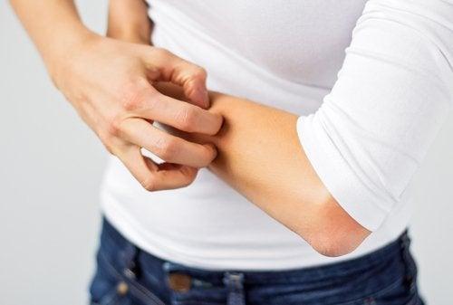 Swędzenie skóry wywołane przez toksyny