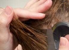 włosy zaatakowane przez wszy ludzkie
