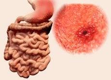 Wrzody żołądkowe