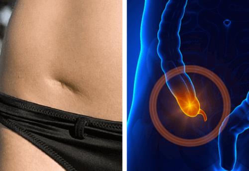 Zapalenie wyrostka robaczkowego – znaki ostrzegawcze