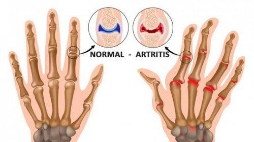 wizerunek dłoni z zapaleniem stawó