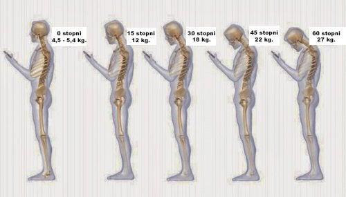 Obciążenia kręgosłupa
